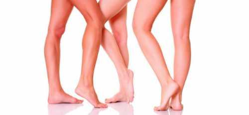 сосудистые звездочки на ногах: как избавиться от косметического дефекта